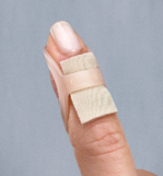 Treating mallet finger with an Oval-8 and Gel Mate silicone gel sheeting