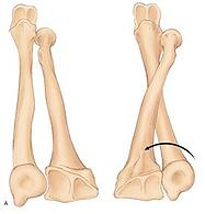 radius around the ulna wrist bone