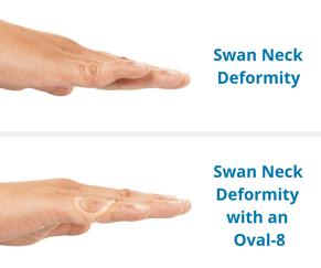 Swan Neck deformity before & after using an oval 8 finger splint