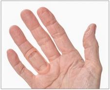 oval 8 finger splint for trigger finger