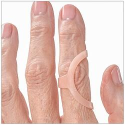Lateral Deviation treated with an Oval-8 Finger Splint