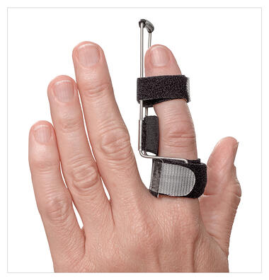 3pp Side Step Splint corrects DIP and PIP joint deviation with adjustable static progressive tension