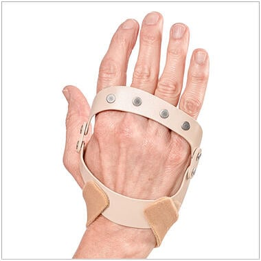 The Polycentric Hinted Ulnar Deviation Splint restores MP joint alignment with mild to moderate force