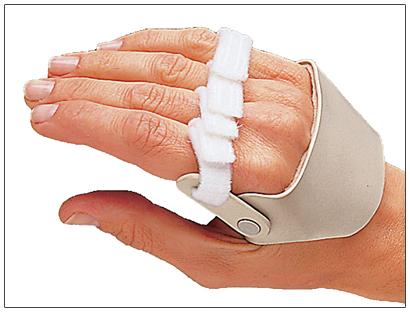 Radial Hinged Ulnar Deviation Splint