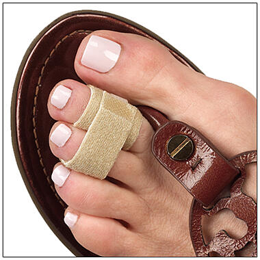 3pp Toe Loops treat flexible hammertoes, claw toes and overlapping toes