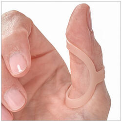 Use an Oval-8 Finger Splint to treat Trigger Thumb