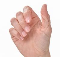oval-8 finger splints for trigger thumb