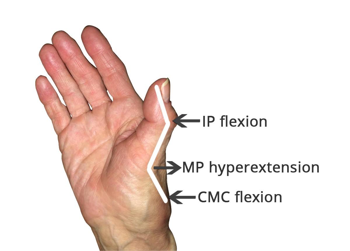 Healthcare Blog 3 Point Products Rheumatoid Arthritis