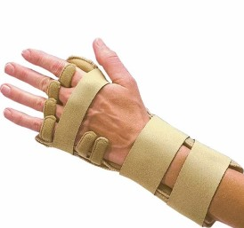 Rheumatoid Arthritis and Night Time Orthosis Use