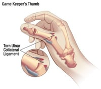 How to treat Gamekeeper's or Skier's Thumb - 3-Point Products